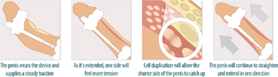 how does peyronies treatment device work