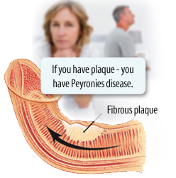 Naturally Way To Get Rid Of Peyronie S Disease